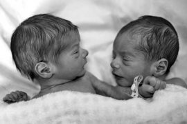 Two newborn babies are asleep under a shared blanket. One wrist has a hospital identification band fastened to it.