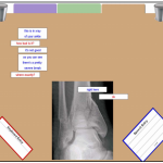 Screenshot shows an xray of a broken ankle. It also shows speech bubbles showing a text conversation between a patient and doctor talking about the xray.